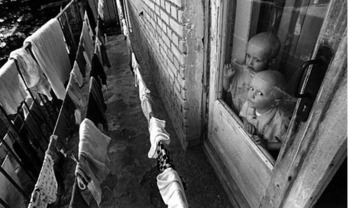 Дети мутанты Чернобыля