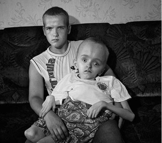 Картинки чернобыля люди мутанты